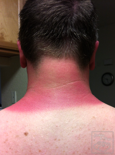 Bad sunburn on neck forgot sunscreen pain