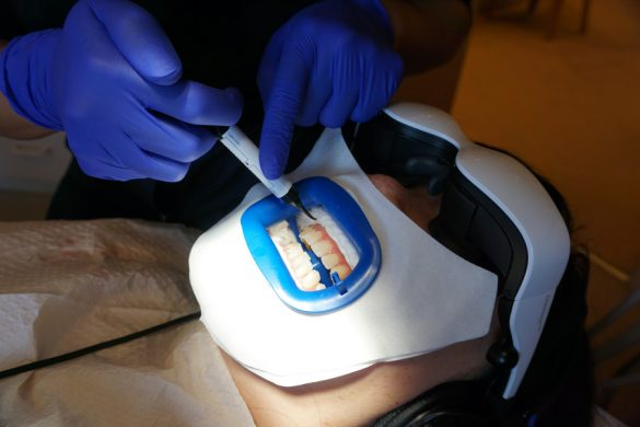 Cookies & Clogs | Dental | Health | Ever wonder what it's like to get Zoom! teeth whitening? Here's what you should know before you get the procedure done. It's key to have a good dental staff like I did at Zoom Dental. See why it was so critial for me including the step-by-step process and before and after photos.