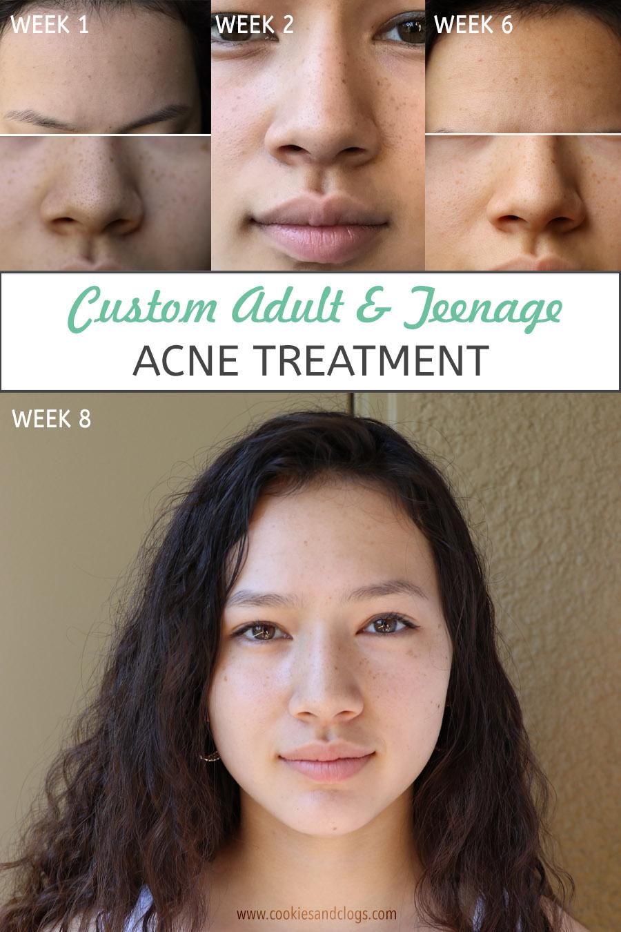 Custom teenage acne treatment w/ Curology